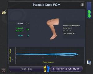 Blue Belt Technologies Knee Robot: evaluate knee ROM (range of motion)