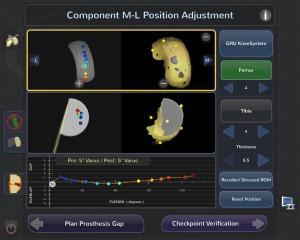 Blue Belt Technologies Knee Robot: position planning